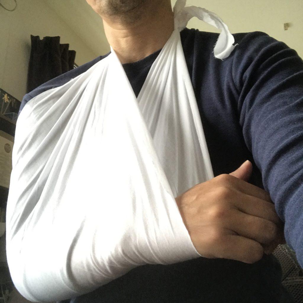 三角巾で腕吊りしました